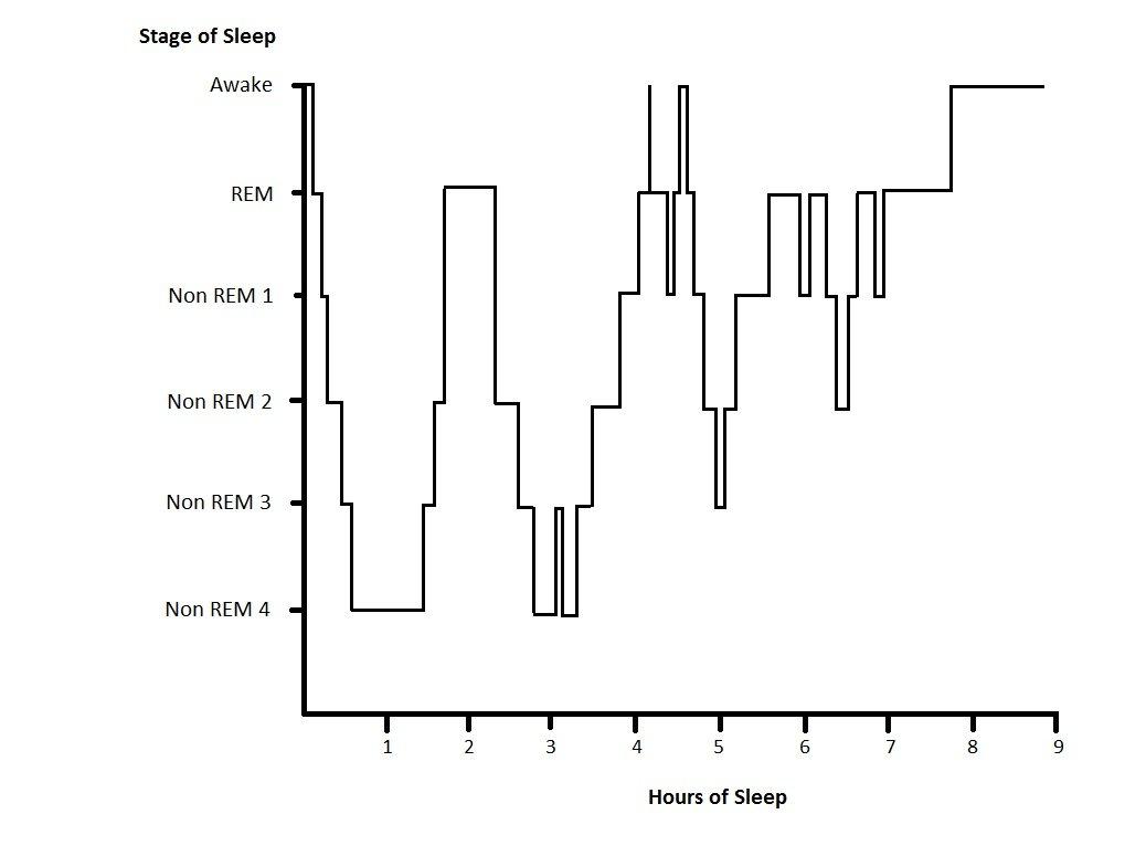 Sleep hyponogram from wikipedia